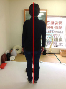 井上さん立位のビフォー(3004