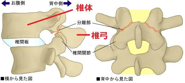 腰椎分離症のイラスト